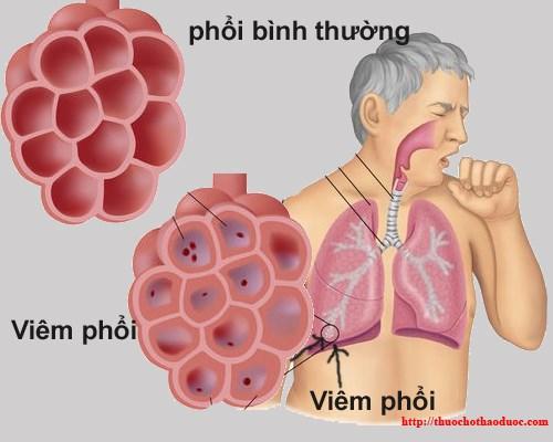 benh-viem-phoi (Copy)